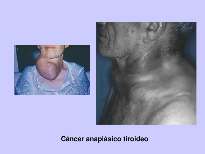 Cáncer anaplásico tiroideo