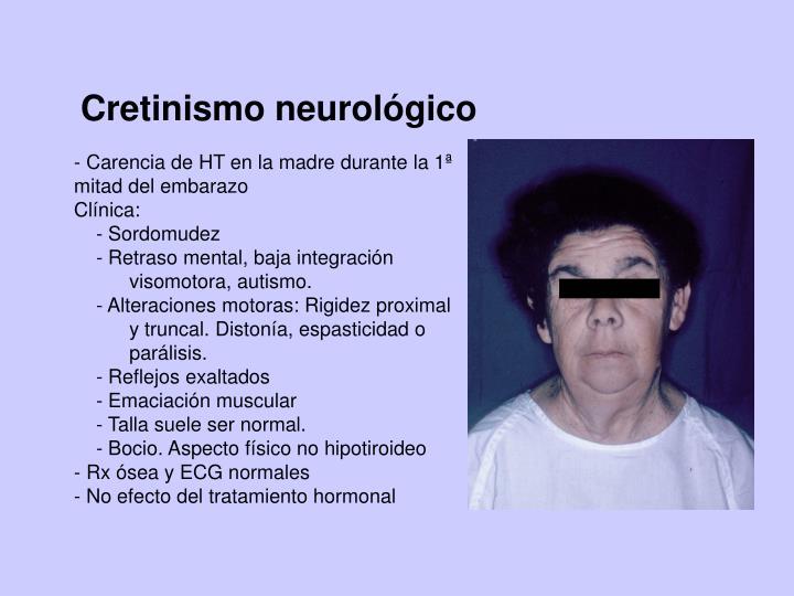 Cretinismo neurológico
