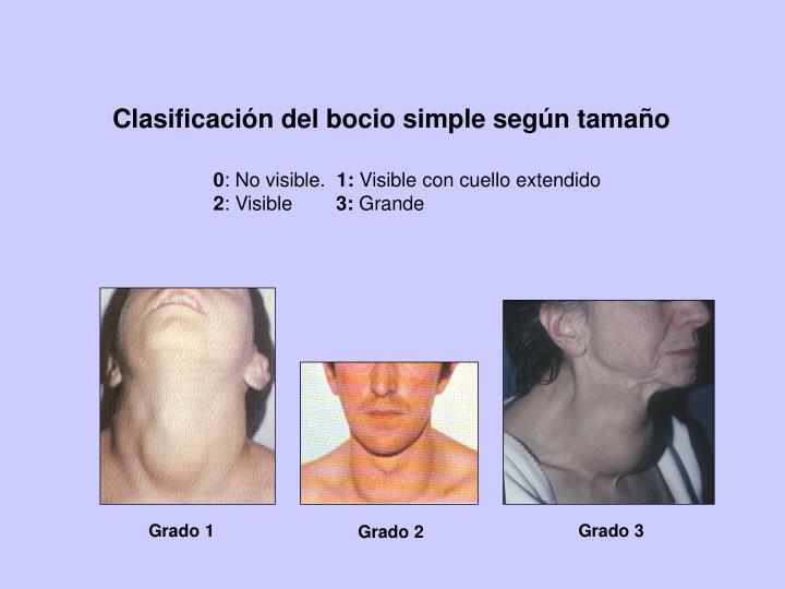 Clasificación del bocio simple según tamaño