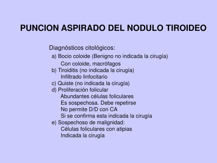PUNCION ASPIRADO DEL NODULO TIROIDEO