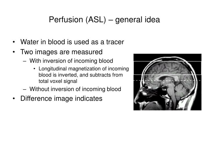Perfusion (ASL) – general idea