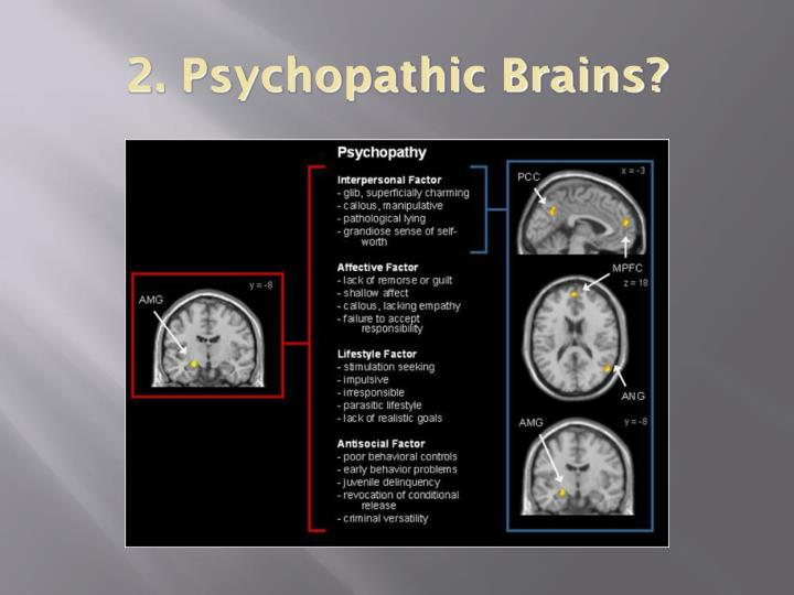 2. Psychopathic Brains?
