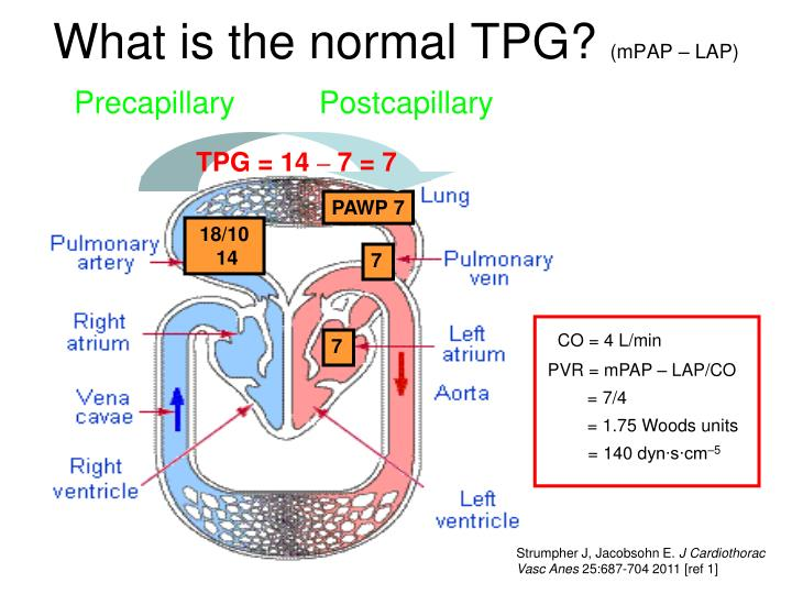 What is the normal tpg mpap lap