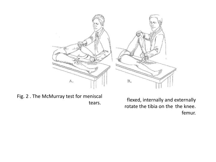 Fig. 2 . The McMurray test for meniscal tears.