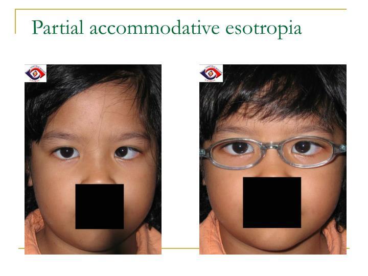 Partial accommodative esotropia