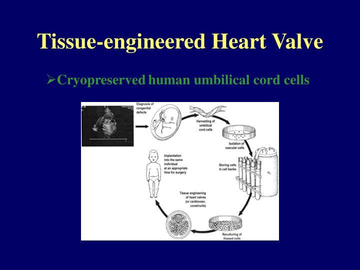 Tissue-engineered Heart Valve
