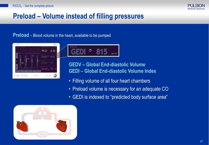 Preload – Volume instead of filling pressures