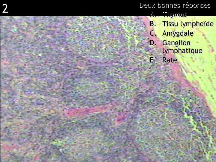 Réponse BD (ganglion lymphatique)