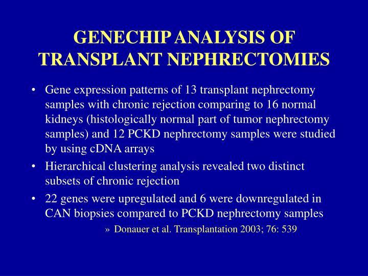 GENECHIP ANALYSIS OF TRANSPLANT NEPHRECTOMIES