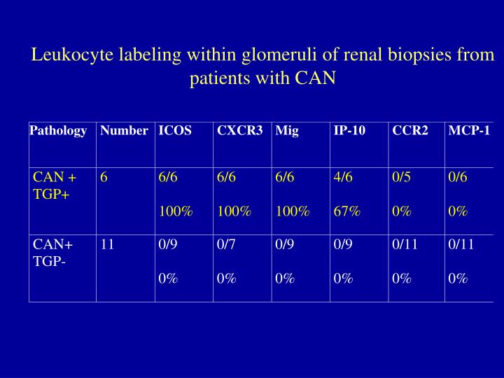 Leukocyte labeling within glomeruli of renal biopsies from patients with CAN