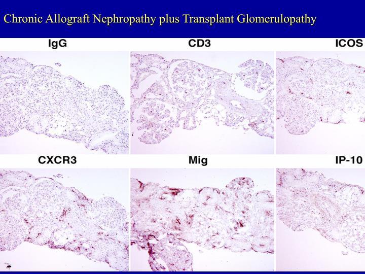 Chronic Allograft Nephropathy plus Transplant Glomerulopathy