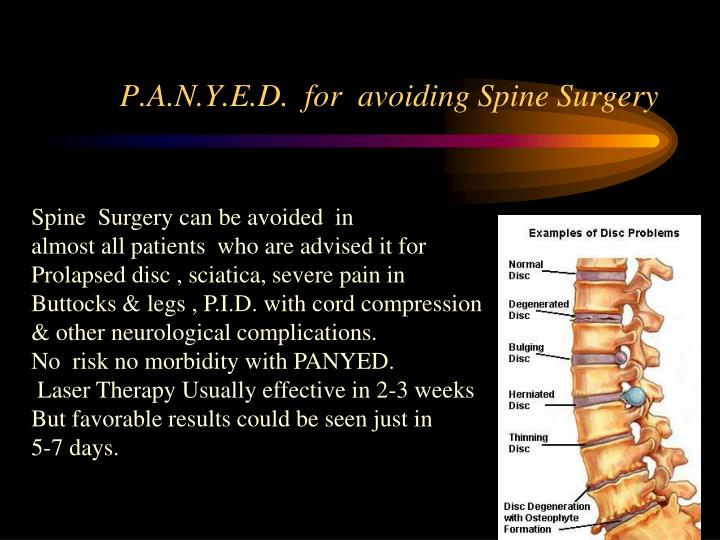 P.A.N.Y.E.D.  for  avoiding Spine Surgery