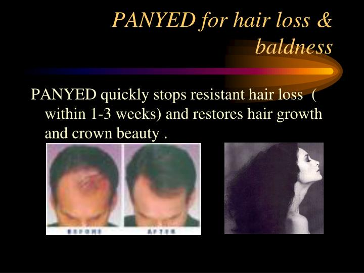 PANYED for hair loss & baldness