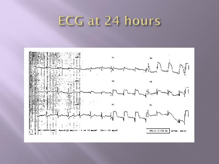 ECG at 24 hours