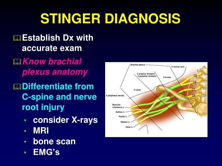 STINGER DIAGNOSIS