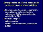 emergencias de las v a a rea en el pcte con una v a a rea artificial