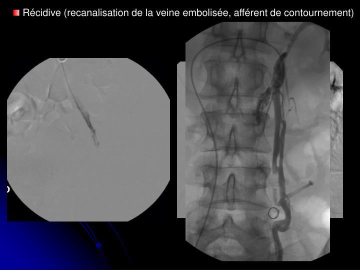 Récidive (recanalisation de la veine embolisée, afférent de contournement)