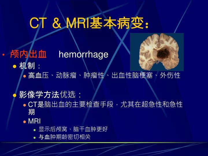 CT & MRI
