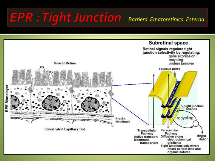 EPR : Tight Junction