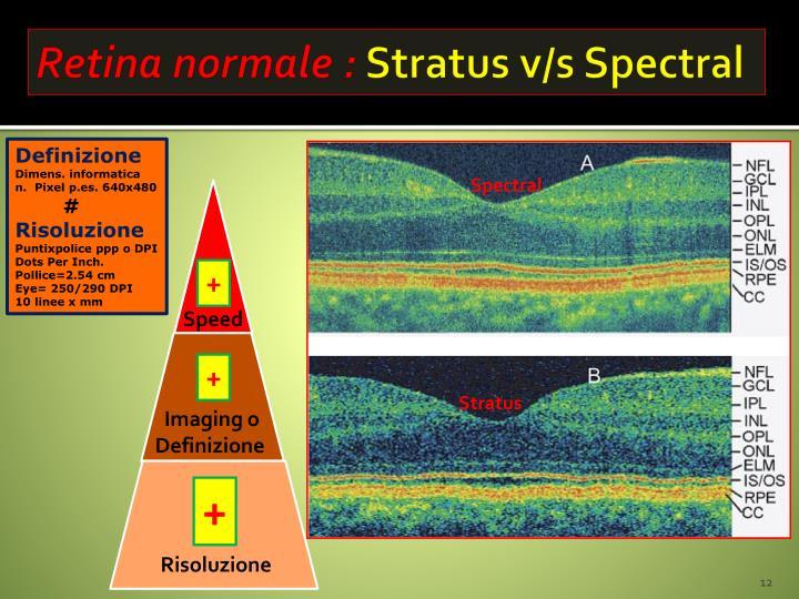 Retina normale :