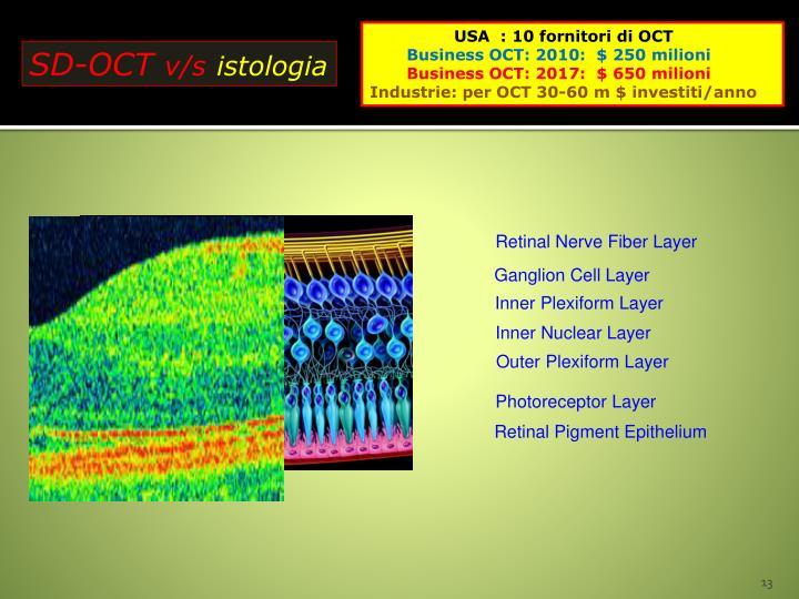 Retinal Nerve Fiber Layer