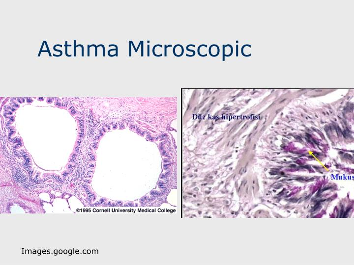 Asthma Microscopic