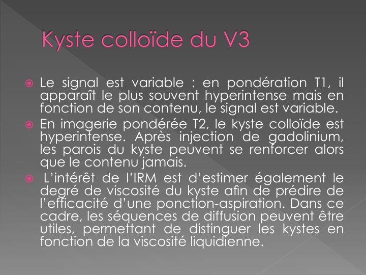 Kyste colloïde du V3