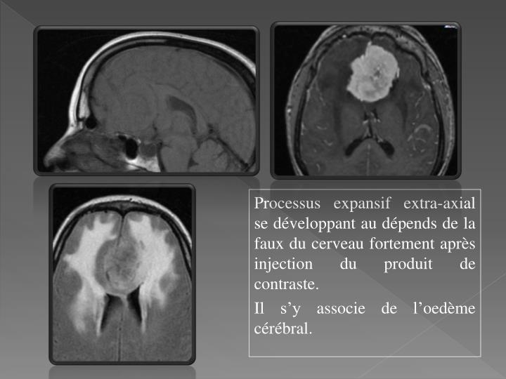Processus expansif extra-axial se développant au dépends de la faux du cerveau fortement après injection du produit de contraste.