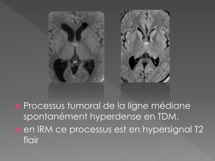 Processus tumoral de la ligne médiane spontanément hyperdense en TDM.