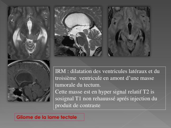 IRM : dilatation des