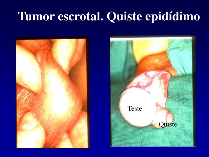 Tumor escrotal. Quiste epidídimo