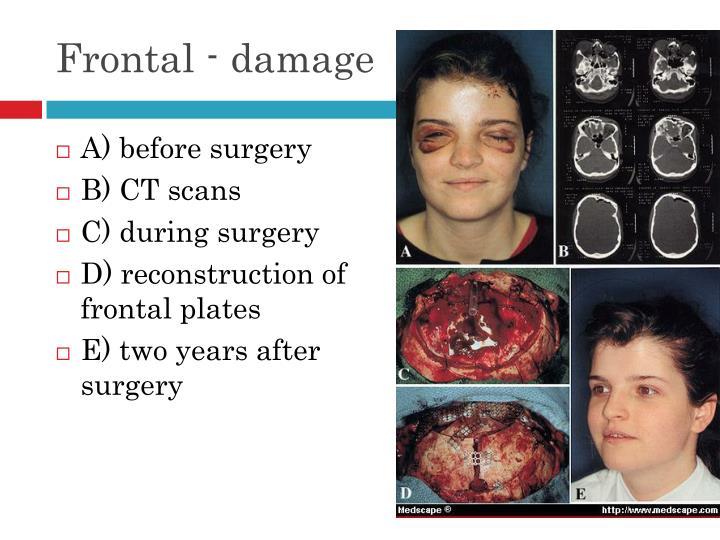 Frontal - damage