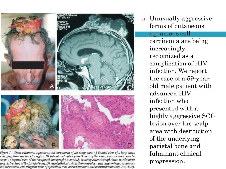 Unusually aggressive forms of cutaneous squamous cell carcinoma are being increasingly recognized as a complication of HIV infection. We report the case of a 59-year-old male patient with advanced HIV infection who presented with a highly aggressive SCC lesion over the scalp area with destruction of the underlying parietal bone and fulminant clinical progression.