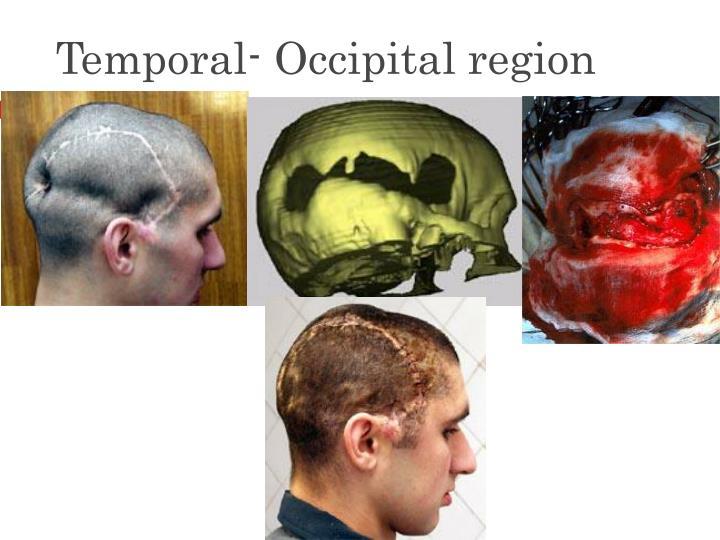 Temporal- Occipital region