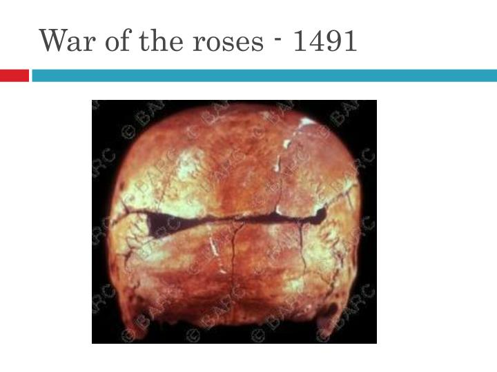 War of the roses - 1491