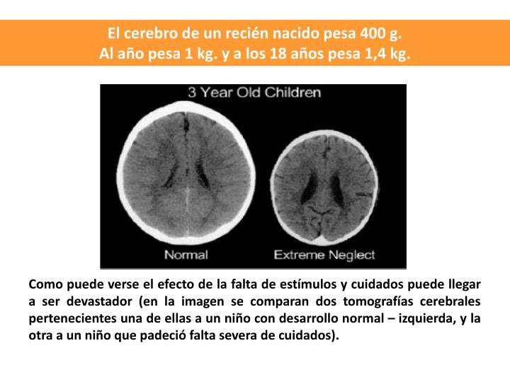 El cerebro de un recin nacido pesa 400 g.
