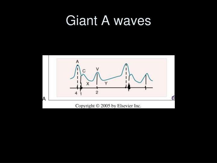 Giant A waves