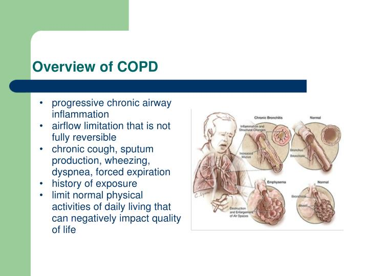 Overview of COPD