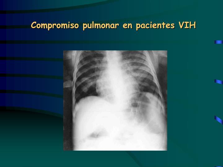 Compromiso pulmonar en pacientes VIH