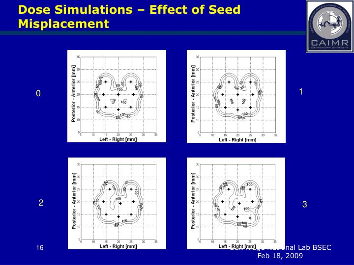 Dose Simulations – Effect of Seed Misplacement