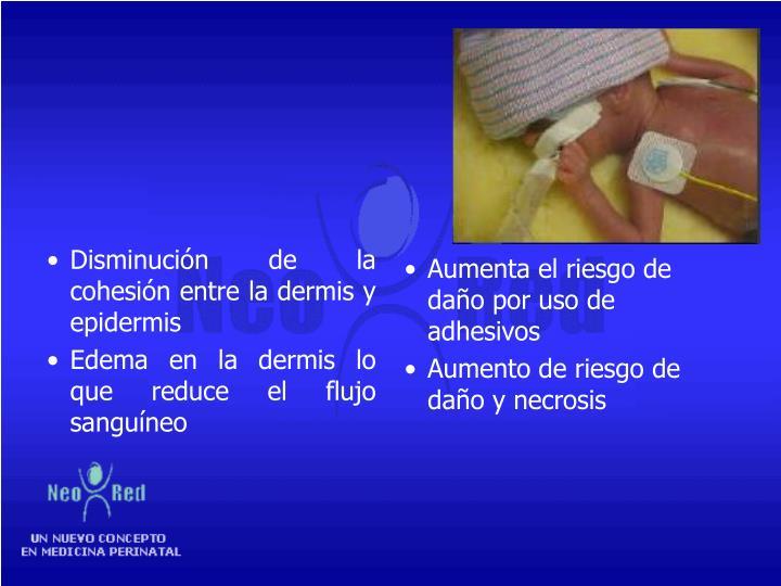 Disminución de la cohesión entre la dermis y epidermis