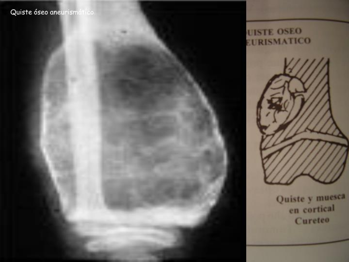 Quiste óseo aneurismático