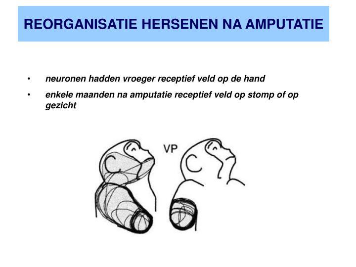 REORGANISATIE HERSENEN NA AMPUTATIE
