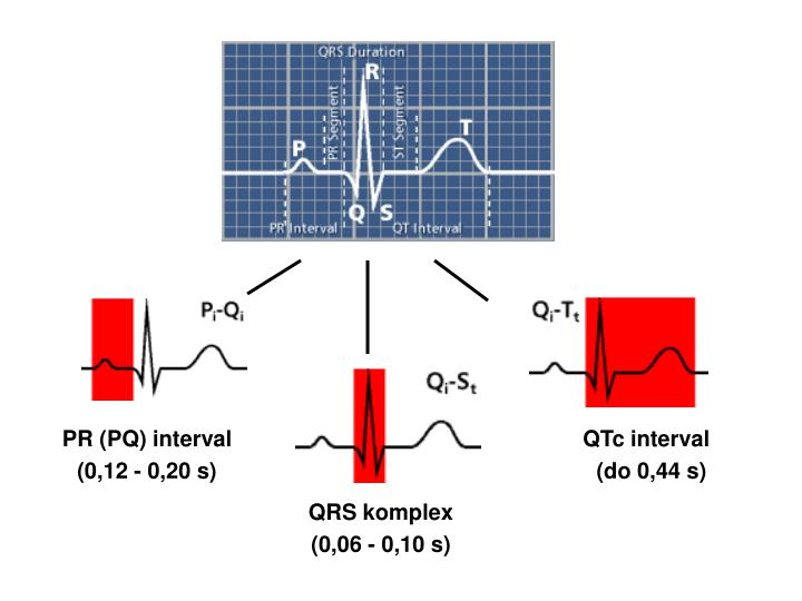 PR (PQ) interval