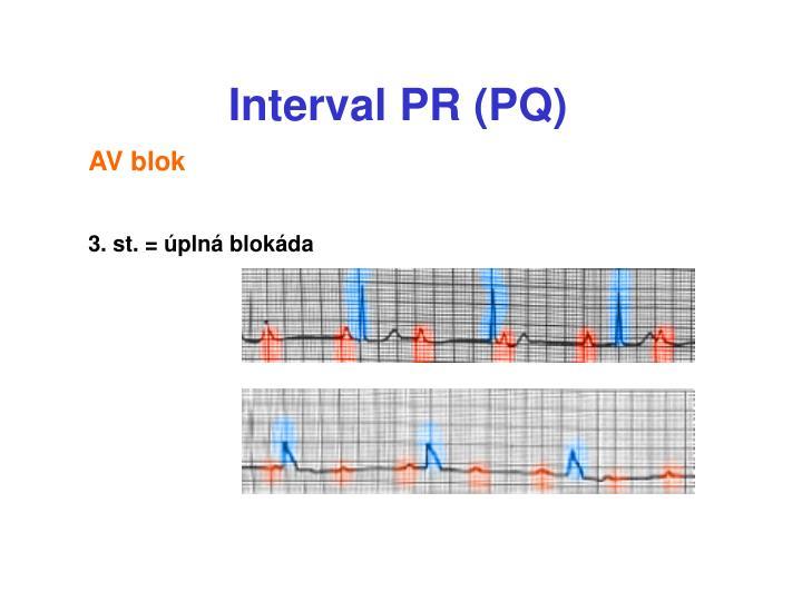 Interval PR (PQ)