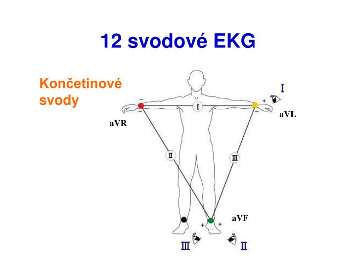 12 svodové EKG