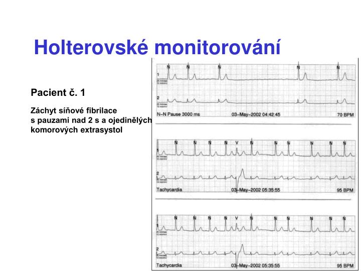 Holterovské monitorování