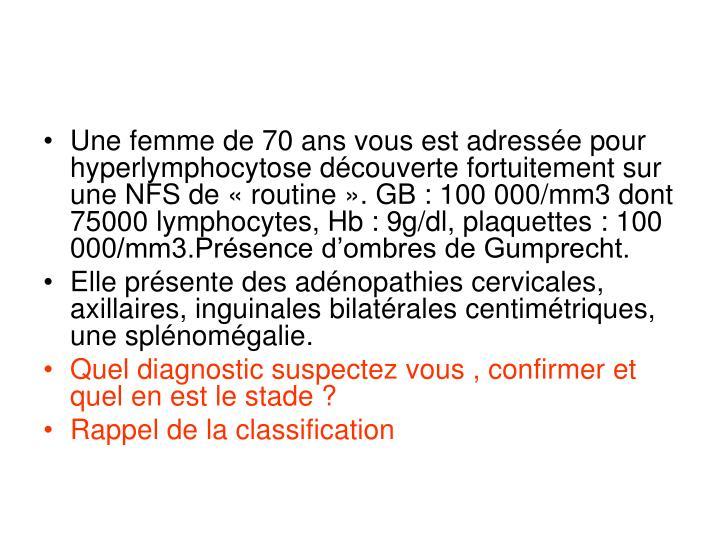 Une femme de 70 ans vous est adressée pour hyperlymphocytose découverte fortuitement sur une NFS de«routine». GB: 100 000/mm3 dont 75000 lymphocytes, Hb: 9g/dl, plaquettes: 100 000/mm3.Présence d'ombres de Gumprecht.