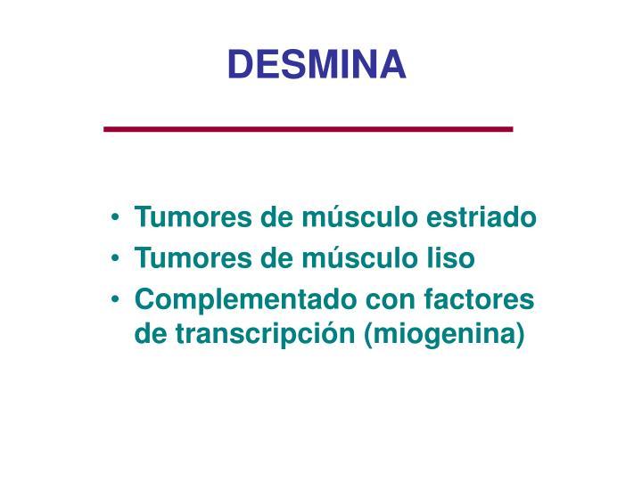 DESMINA