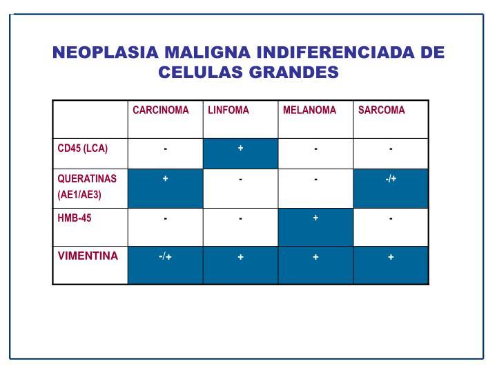 NEOPLASIA MALIGNA INDIFERENCIADA DE CELULAS GRANDES